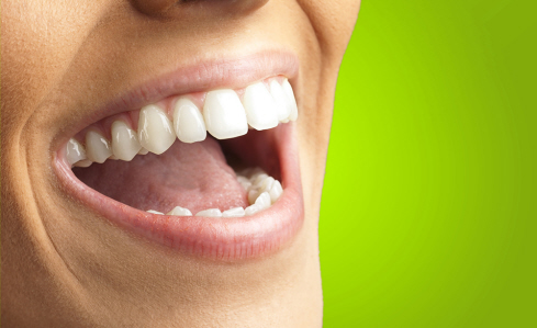 Chicago Teeth Whitening Methods: Why Everyone has that Smile on Their Faces